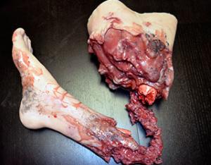 IED-leg-simulated-injury