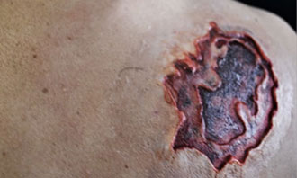 Shoulder Wound Medical Training Moulage | SIMETRI