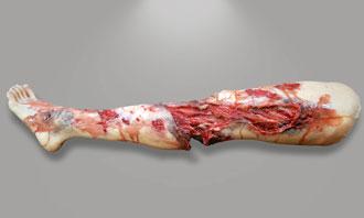 Leg Amputation Medical Training Moulage   SIMETRI