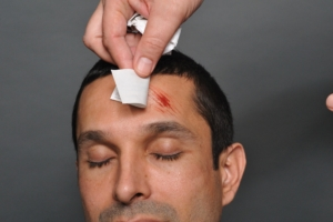 Application of SIMETRI abrasion Trauma Tattoo product.